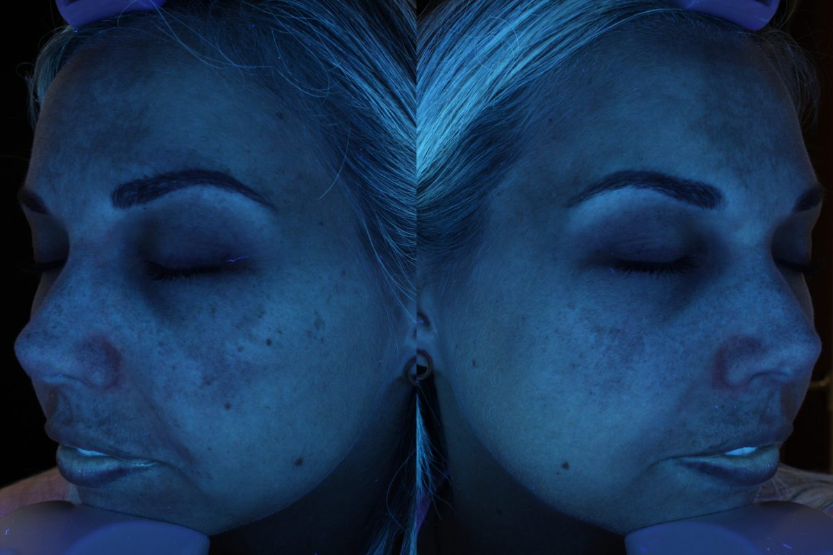 Age spots and staining on my face? Nope, It's Melasma